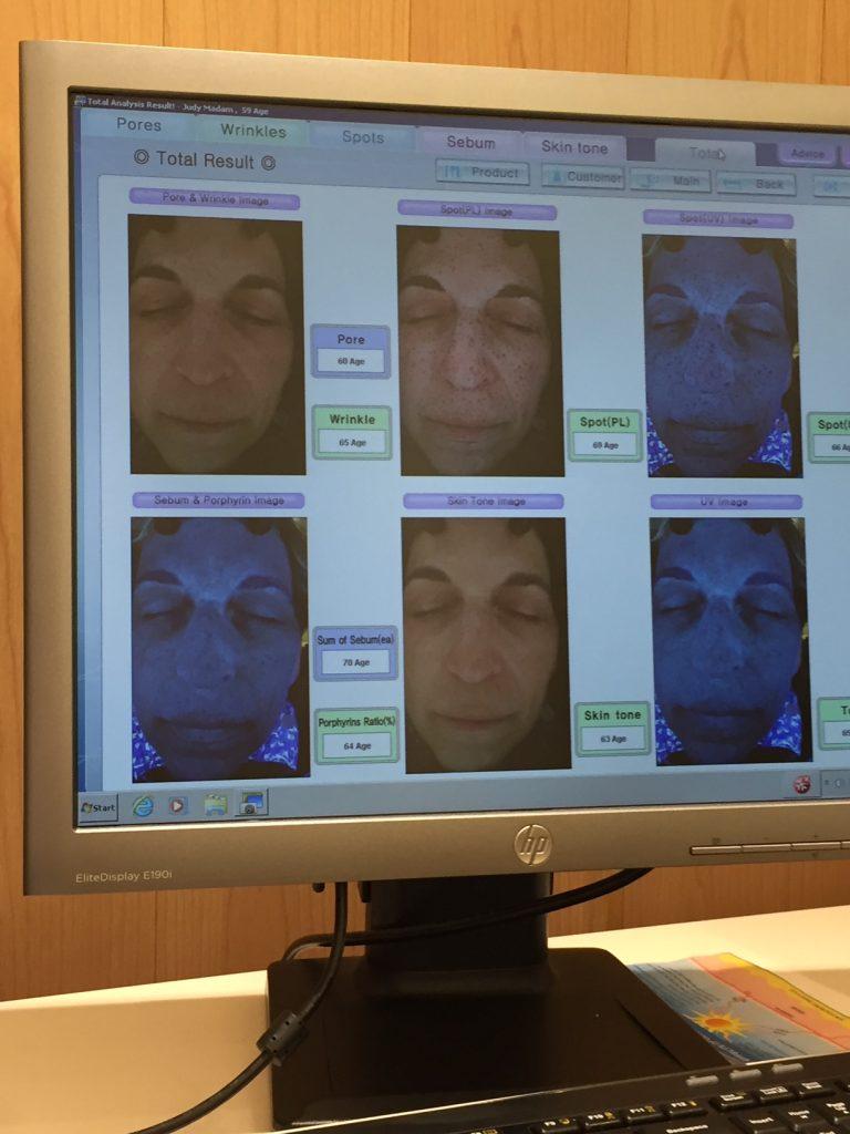 Skin care analysis